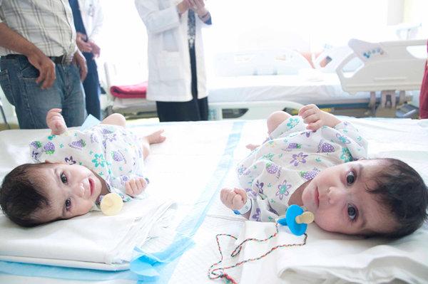 Врачи подарили отдельную жизнь двум сиамским малышкам.ФОТО. 305039.jpeg