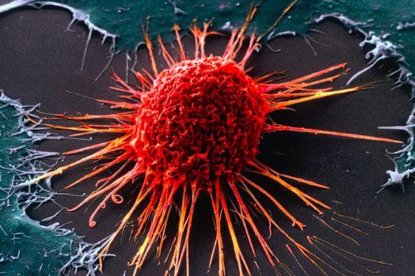 Лечение онкологии за границей - деньги в никуда. детская онкология