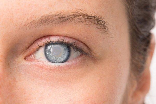 Глазные травмы. Что делать если в глаз попала кислота?. катаракта