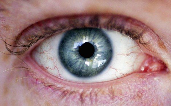 Офисный глаз. «Компьютерное» зрение нуждается в защите. «Компьютерное» зрение