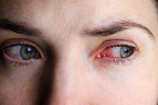Морозные слезы. Как снять отеки глаз. слезоточивость глаз
