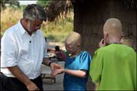 Люди-альбиносы в Танзании расходятся... на амулеты