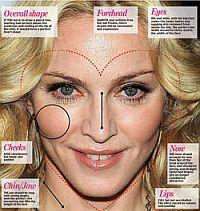 Пластические хирурги нарисовали все разрезы на лице Мадонны