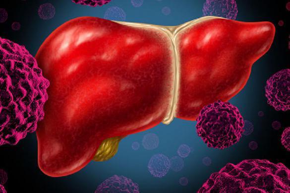 Найден новый способ диагностики рака печени. Почему это важно. 389189.jpeg