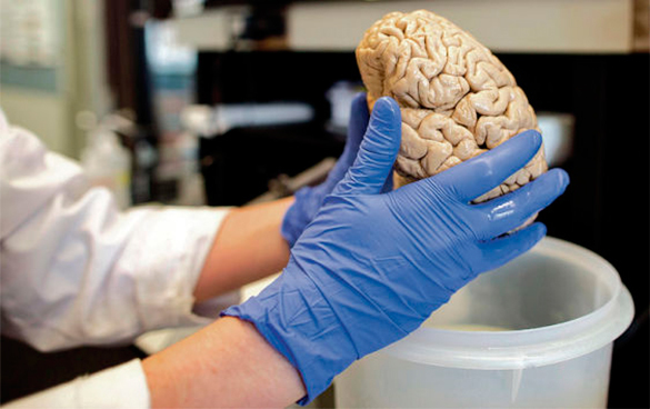 Австралия планирует вложить 250 млн долларов в разработку протеза мозга. 289198.jpeg