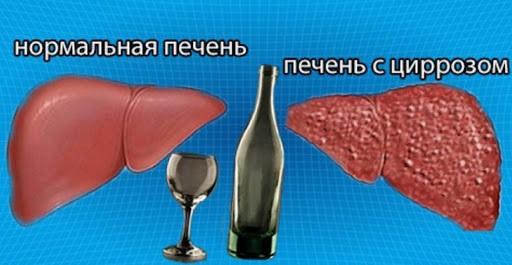 Болезни печени человека: проблемы с кровообращением, гепатиты, цирроз и алкоголь. Болезни печени и алкоголь