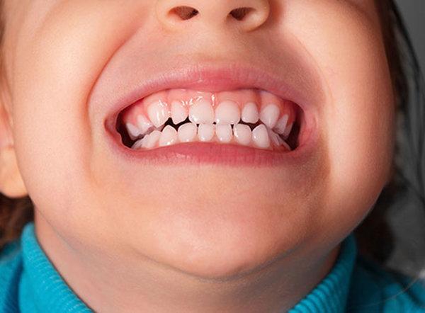 Витамины для зубов. дети и зубы