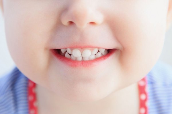 Витамины для зубов. детские зубы
