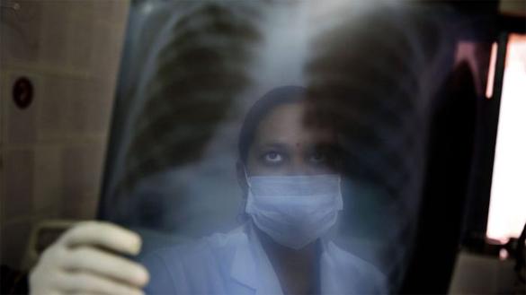 осмотр рентген-снимка