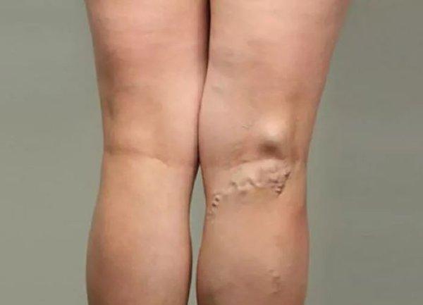 Проверьте, здоровы ли ваши ноги. риск варикоза