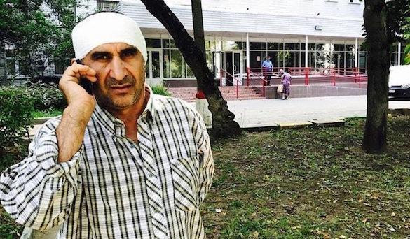 Москвич откусил ухо дворнику Махмуду за жену с собачкой. 374285.jpeg