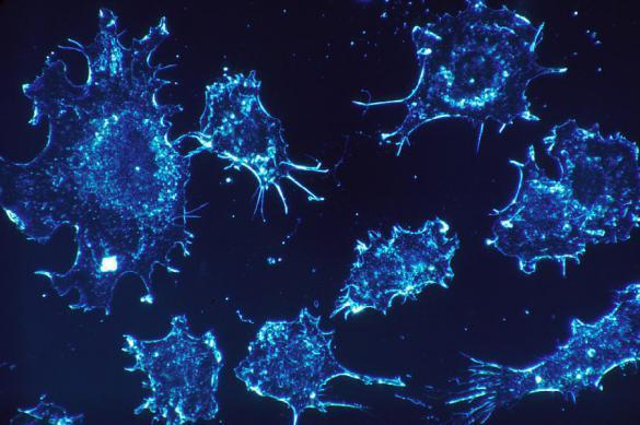 Ученые из РФ уничтожили рак, принудив клетки «голодать»