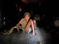 Эпидемия проказы началась в Индии. 243297.jpeg