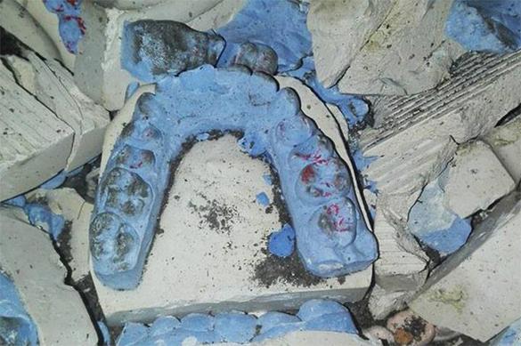 Дорожную яму около стоматологической поликлиники вВоронеже заделали зубными протезами