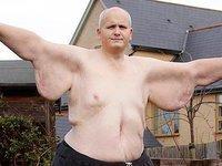 Самый толстый человек мира сбросил почти 300 кг. 278353.jpeg