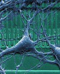 Микросхемы ремонтируют головной мозг
