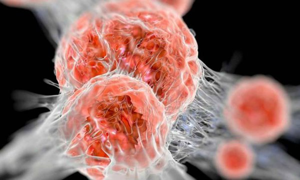 Рак становится глобальной угрозой. онкобольные
