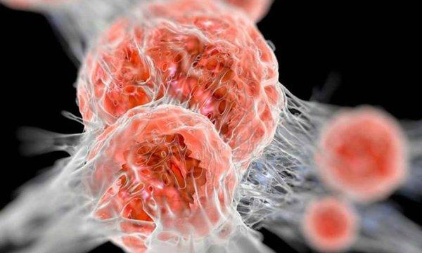 Онкология: несколько поводов для оптимизма. причины возникновения рака