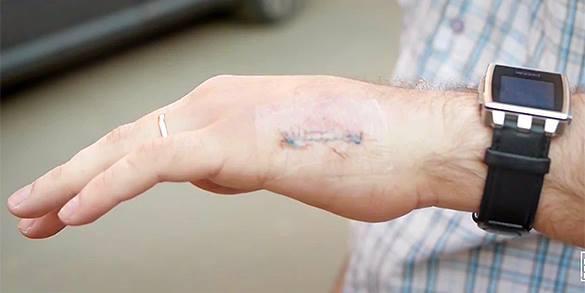 Московский инженер вшил в руку чип метробилета и собирается вживить чип кредитки. 321488.jpeg