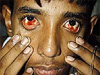 Бразильская лихорадка денге легко затмила