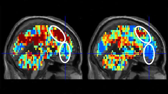 Потенциальных самоубийц выявит визуализация мозга. 378522.jpeg