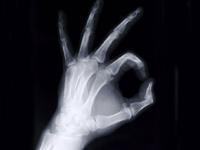Недовольный пациент сломал руку травматологу