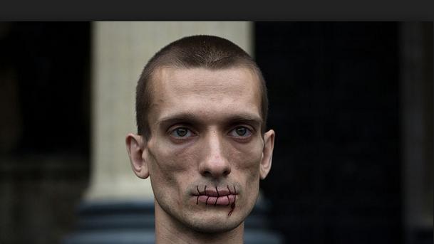 Членовредитель Павленский отрезал себе ухо и попал в
