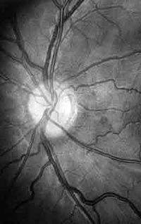 Заболевания мозга можно наблюдать через глаза