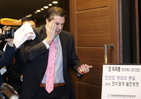 Посла США ранили в Южной Корее. Марк Липперт, посол США, ранение