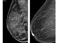 Рак груди будут лечить жидким азотом. 276570.jpeg