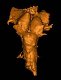 Найден самый старый мозг на Земле
