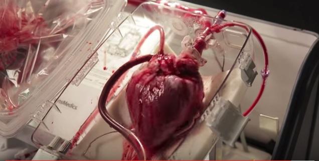 В Новосибирске создали искусственное сердце, стоящее в пять раз