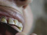 Японцы научились выращивать зубы. 242603.jpeg