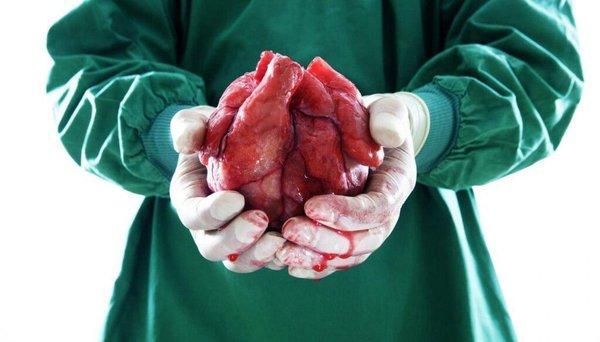 """""""Презумпция согласия"""". Не забудь умереть!. изъятие органов"""