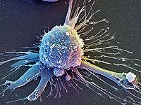 Из стволовых клеток вырастили полноценную мышцу