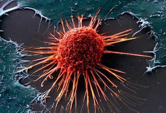 Исследование: меланома становится невосприимчивой к химиотерапии. 376707.jpeg