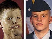 Американские врачи пересадили солдату-герою лицо. 236735.jpeg