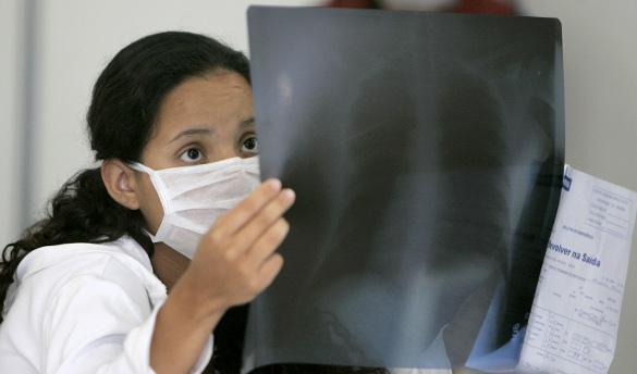 медик с рентген-снимком