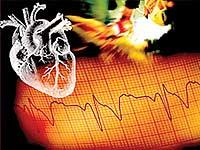 Селезенка поможет сердцу восстановиться после инсульта