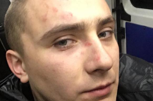 В Одессе избили националиста, срывавшего концерты российских артистов. В Одессе избили националиста, срывавшего концерты российских арт