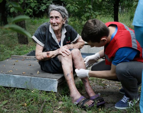 Столетняя жительница Донецка лишилась ноги из-за обстрела силовиков.