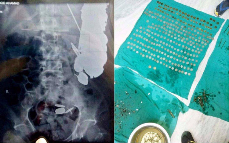 Впавший в депрессию мужчина проглотил собачью цепь, 200 монет и кусок стекла. Впавший в депрессию мужчина проглотил собачью цепь, 200 монет и