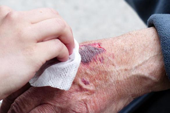 Почему порезы и царапины заживают днем быстрее. Почему порезы и царапины заживают днем быстрее
