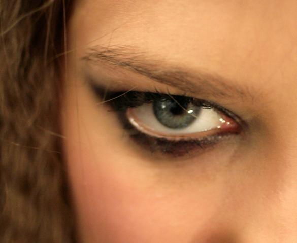 Осенью в России пройдет вторая операция по вживлению искусственного глаза. Осенью в России пройдет вторая операция по вживлению искусственн
