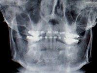 Онищенко может запретить стоматологам делать рентген. 237916.jpeg