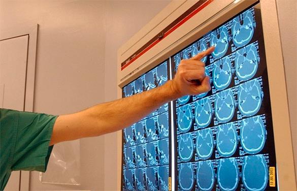У 26-летней американки обнаружили гигантскую дыру в мозгу. 319969.jpeg