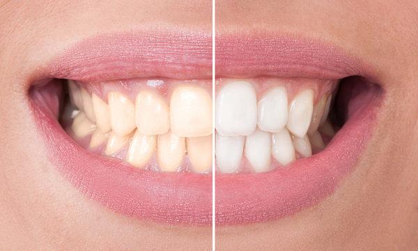 Стоит ли отбеливать зубы?. отбеливание зубов
