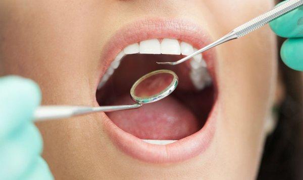 Заделать дупло в зубе – теперь пара пустяков. лечение кариеса
