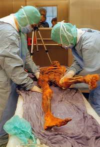 Иглоукалывание спасало кроманьонца от боли