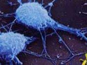 Новая диета... из иммунитета